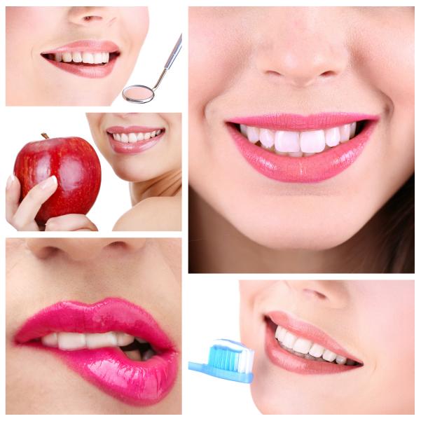 Profilaxie dentara